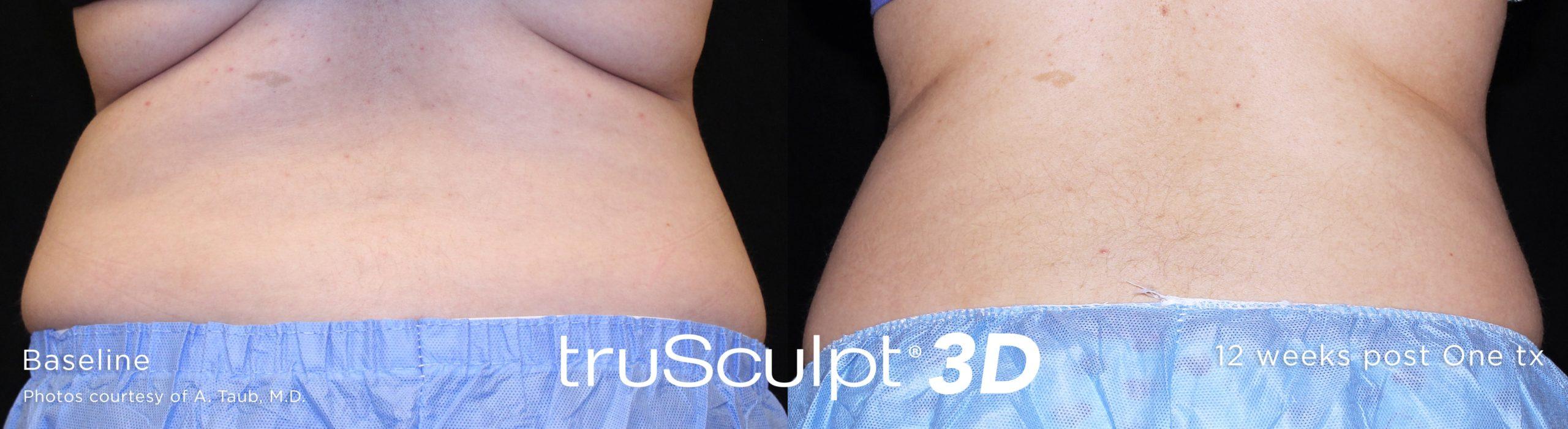 trusculpt_3d_14-1